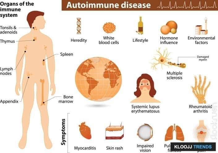Autoimmune disease infographic. Medical Infographic set elements and symbols for design.