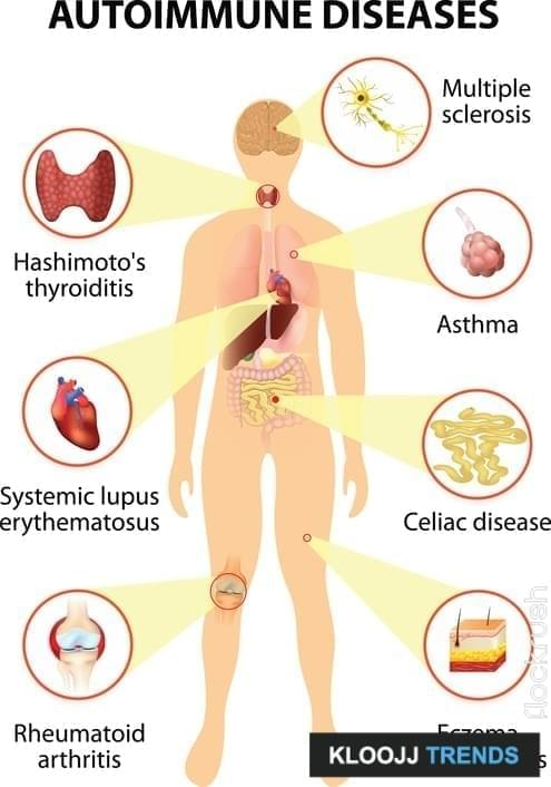 psoriasis and overactive immune system
