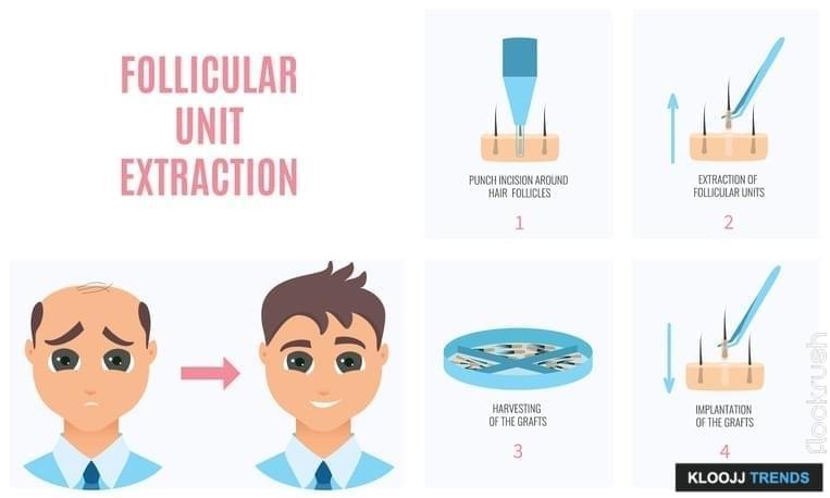 Laser Hair Restoration